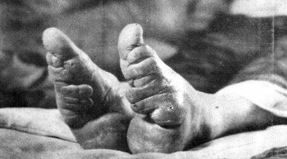 Photos érotiques des orteils